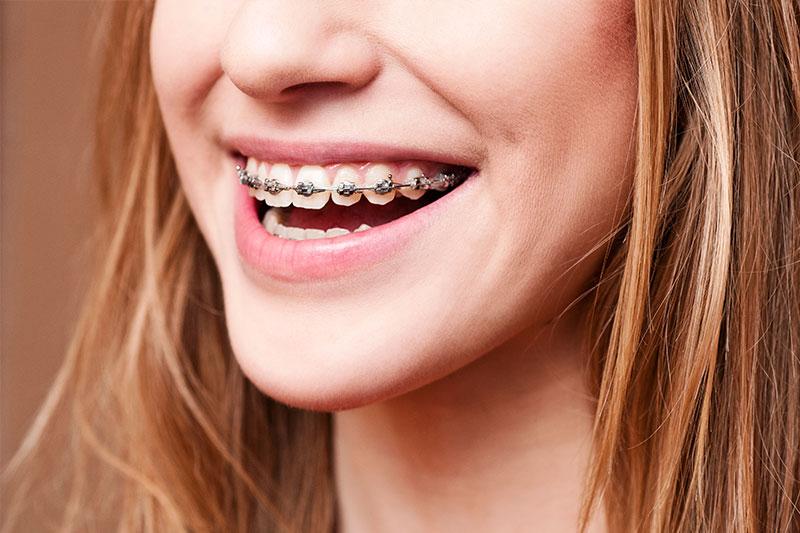 Cupertino Orthodontics